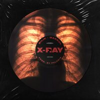 Markul feat. БИЛИК & Palagin - X-Ray
